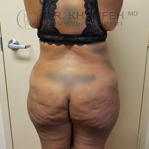 Tummy Tuck Gallery - Patient 3762396 - Image 7