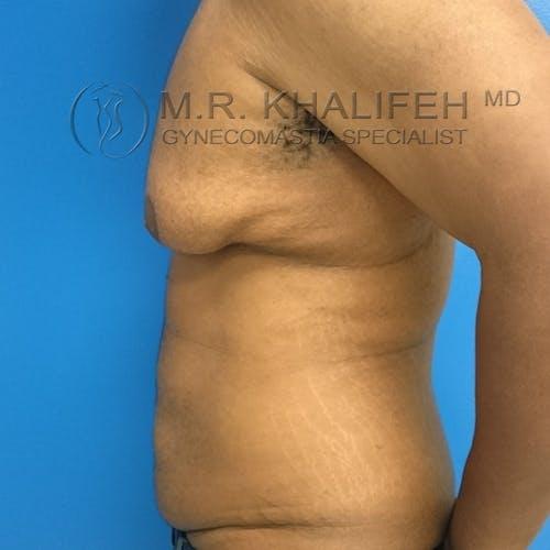 Gynecomastia Gallery - Patient 3762397 - Image 5