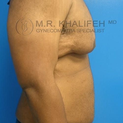 Gynecomastia Gallery - Patient 3762397 - Image 7