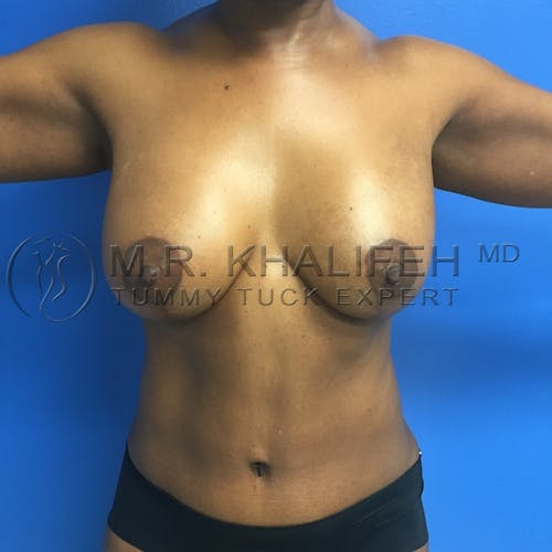 Tummy Tuck Gallery - Patient 3762400 - Image 2