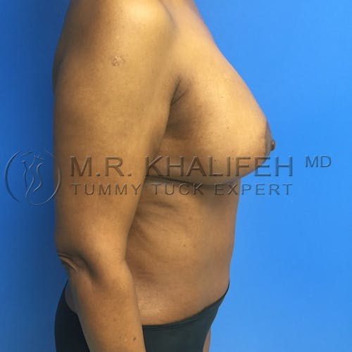 Tummy Tuck Gallery - Patient 3762400 - Image 10
