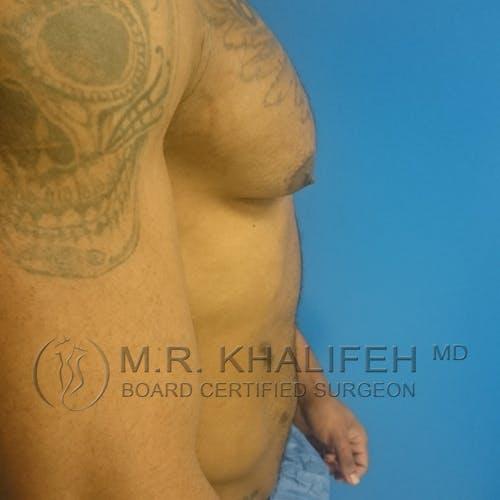 Gynecomastia Gallery - Patient 3762404 - Image 5