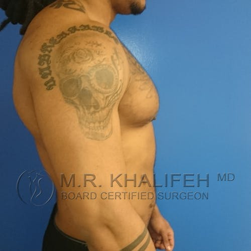Gynecomastia Gallery - Patient 3762404 - Image 6