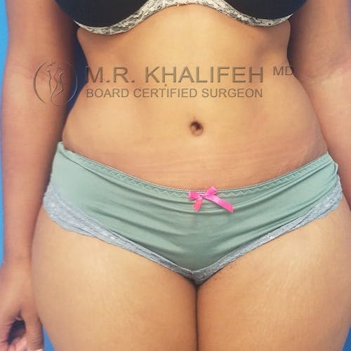 Tummy Tuck Gallery - Patient 3762405 - Image 2