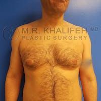 Gynecomastia Gallery - Patient 3762409 - Image 1