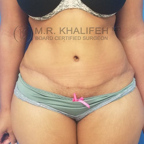 Tummy Tuck Gallery - Patient 3762405 - Image 8