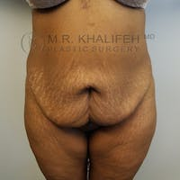 Tummy Tuck Gallery - Patient 3762410 - Image 1
