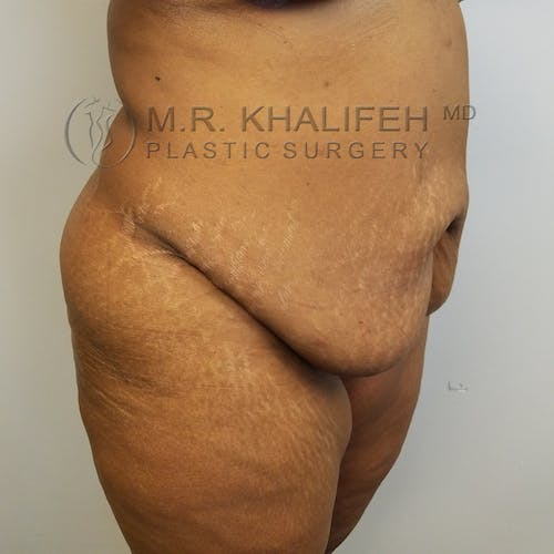 Tummy Tuck Gallery - Patient 3762410 - Image 3