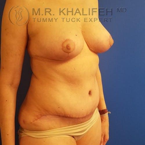 Tummy Tuck Gallery - Patient 3762414 - Image 4