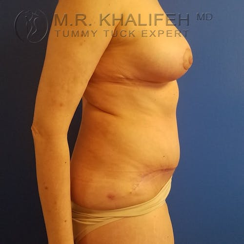 Tummy Tuck Gallery - Patient 3762414 - Image 6
