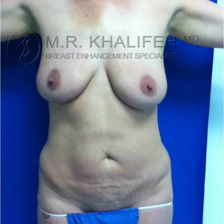 Mommy Makeover Gallery - Patient 3762583 - Image 1
