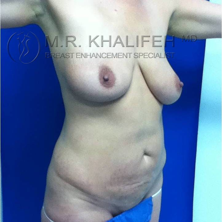 Mommy Makeover Gallery - Patient 3762583 - Image 3