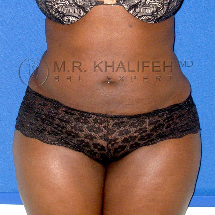 Brazilian Buttock Lift Gallery - Patient 3762584 - Image 2
