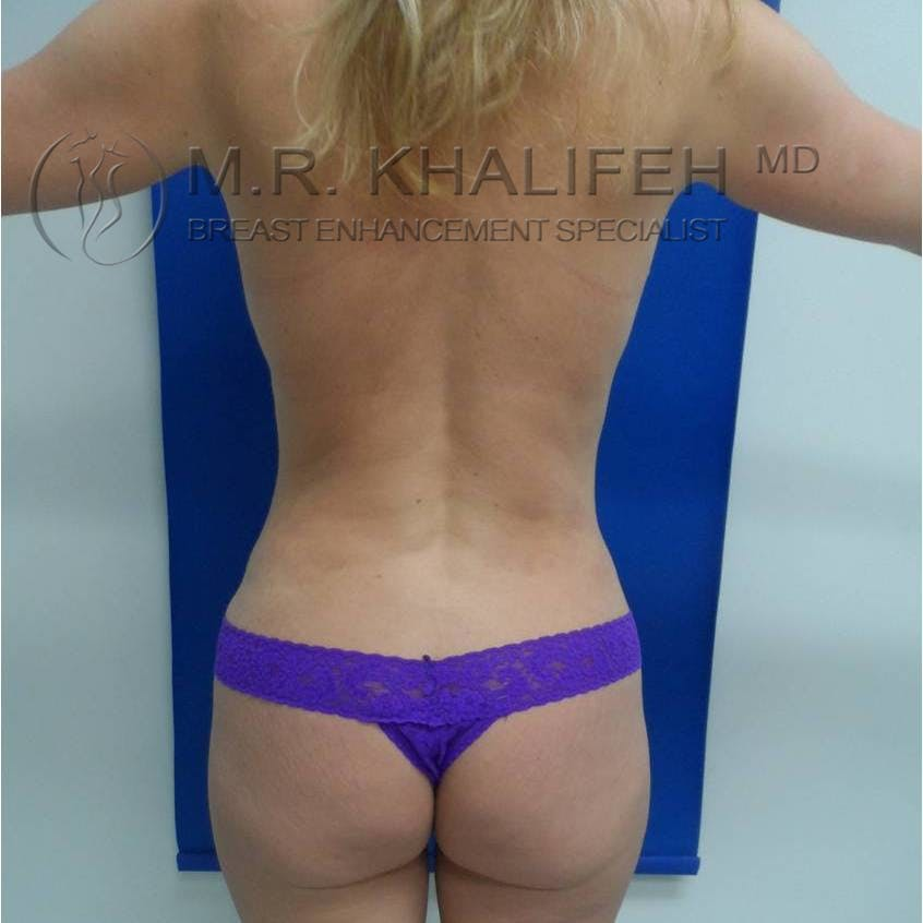 Mommy Makeover Gallery - Patient 3762583 - Image 8