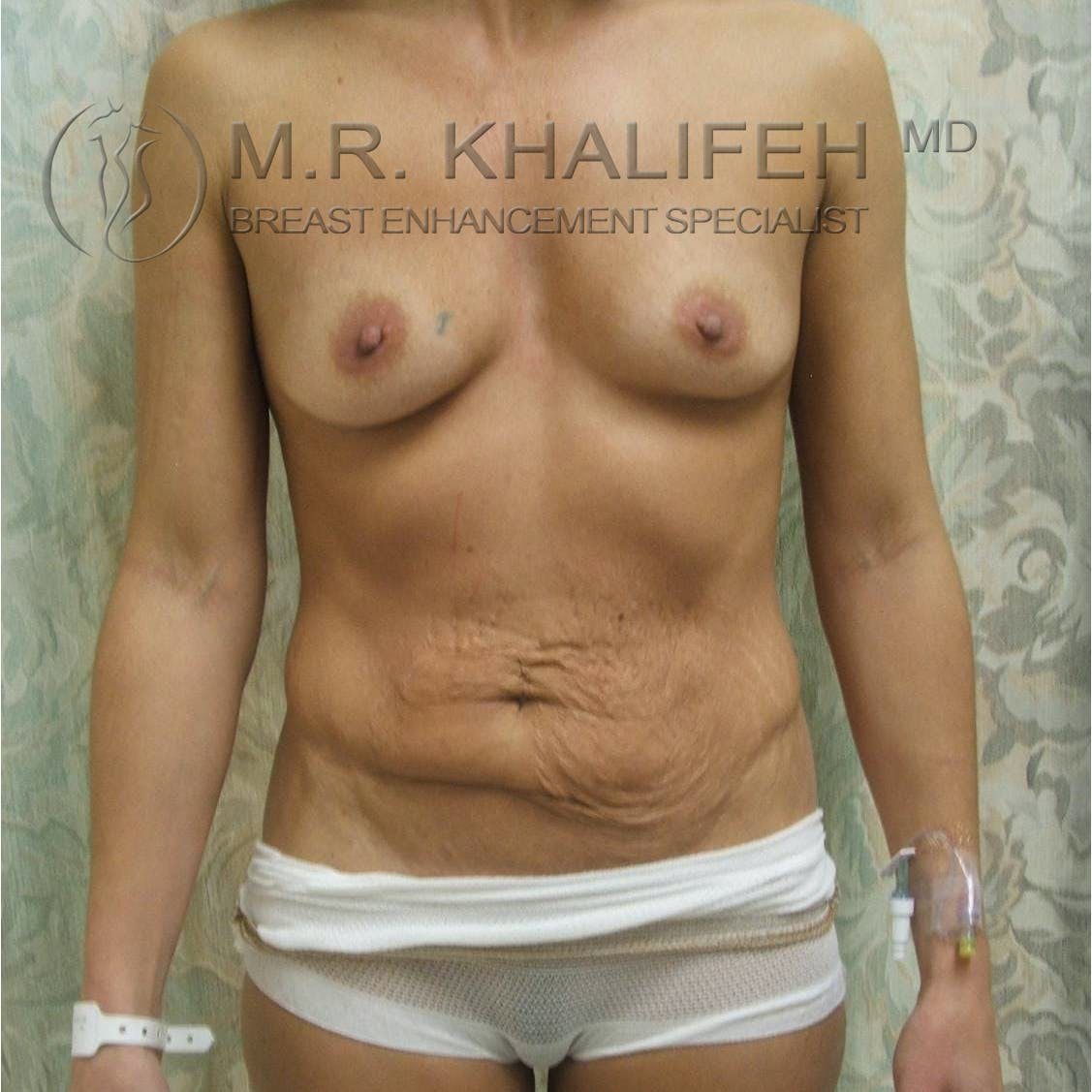 Mommy Makeover Gallery - Patient 3762586 - Image 5