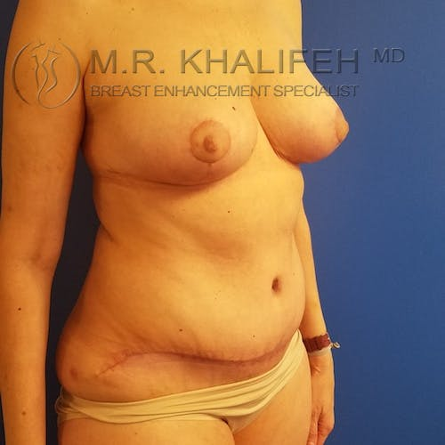 Mommy Makeover Gallery - Patient 3762589 - Image 4