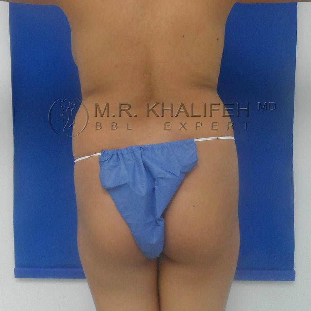 Brazilian Buttock Lift Gallery - Patient 3762591 - Image 1