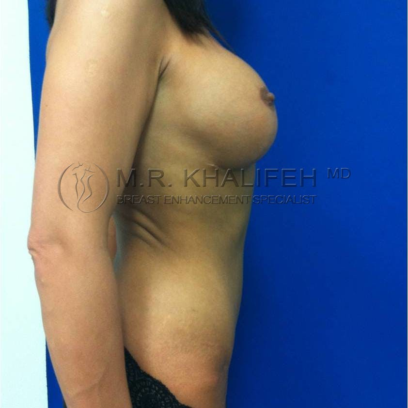 Mommy Makeover Gallery - Patient 3762590 - Image 4