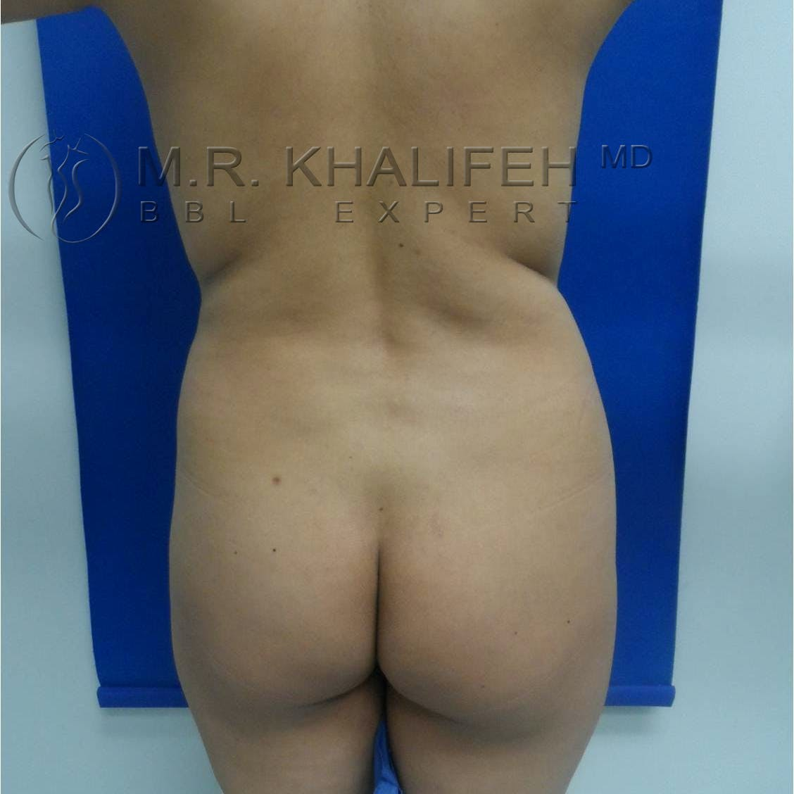 Brazilian Buttock Lift Gallery - Patient 3762612 - Image 1