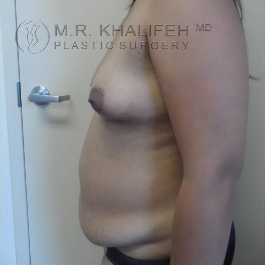Mommy Makeover Gallery - Patient 3762611 - Image 5
