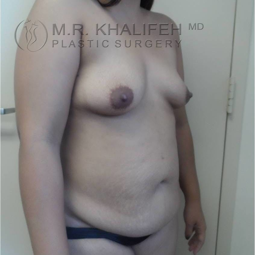 Mommy Makeover Gallery - Patient 3762611 - Image 7