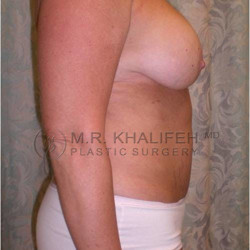 Mommy Makeover Gallery - Patient 3762619 - Image 3