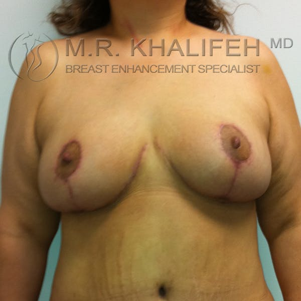 Mommy Makeover Gallery - Patient 3762625 - Image 2