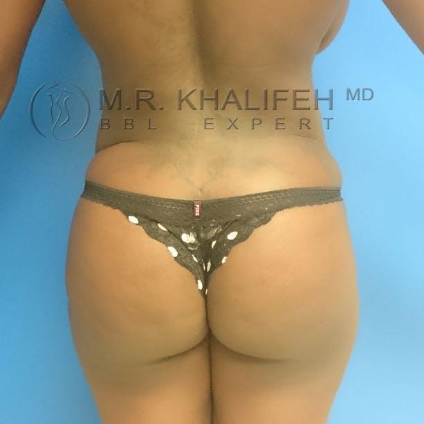 Brazilian Buttock Lift Gallery - Patient 3762623 - Image 2