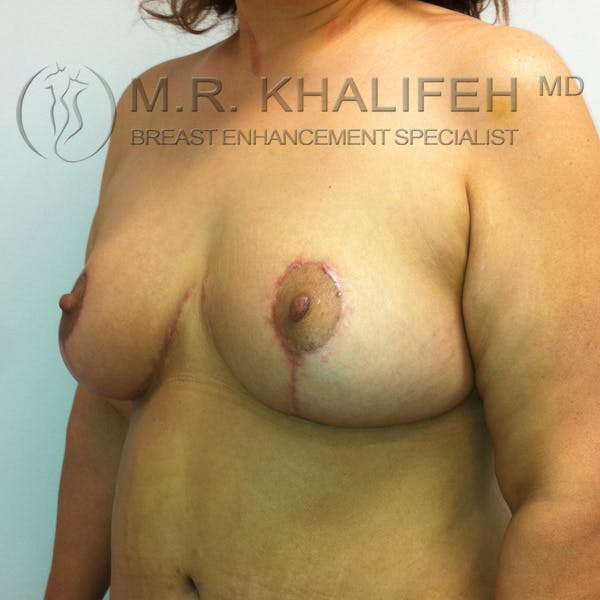Mommy Makeover Gallery - Patient 3762625 - Image 4