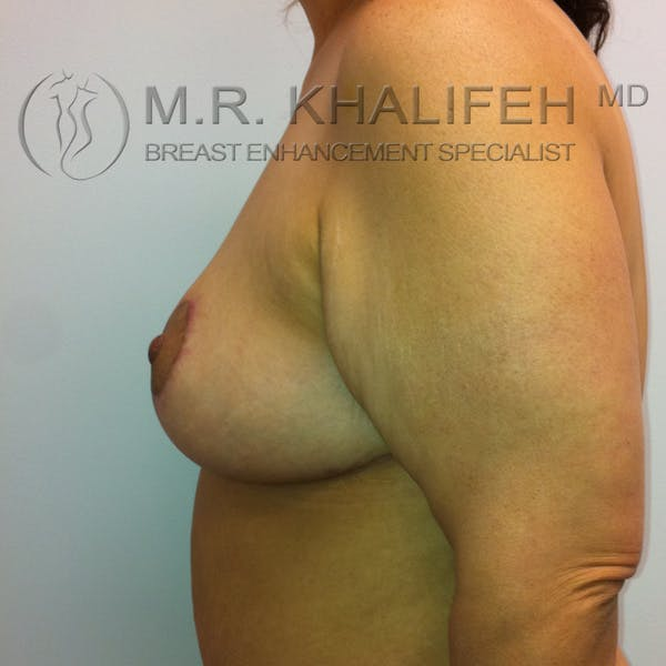 Mommy Makeover Gallery - Patient 3762625 - Image 6