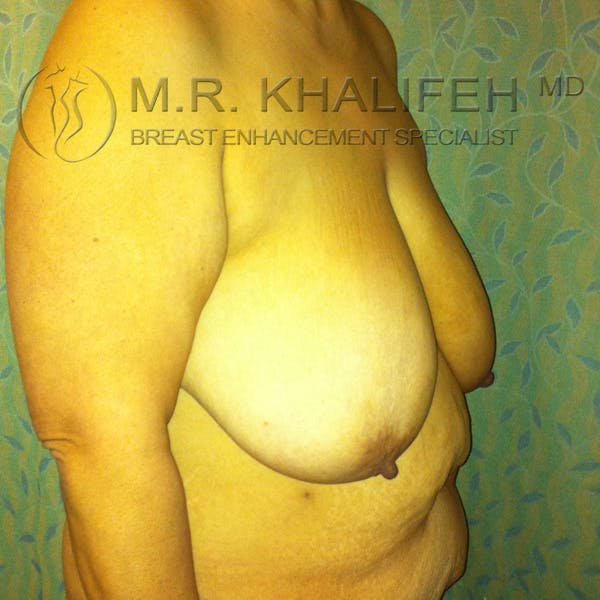 Mommy Makeover Gallery - Patient 3762625 - Image 7