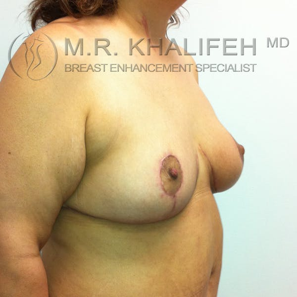 Mommy Makeover Gallery - Patient 3762625 - Image 8