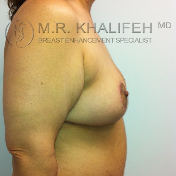 Mommy Makeover Gallery - Patient 3762625 - Image 10