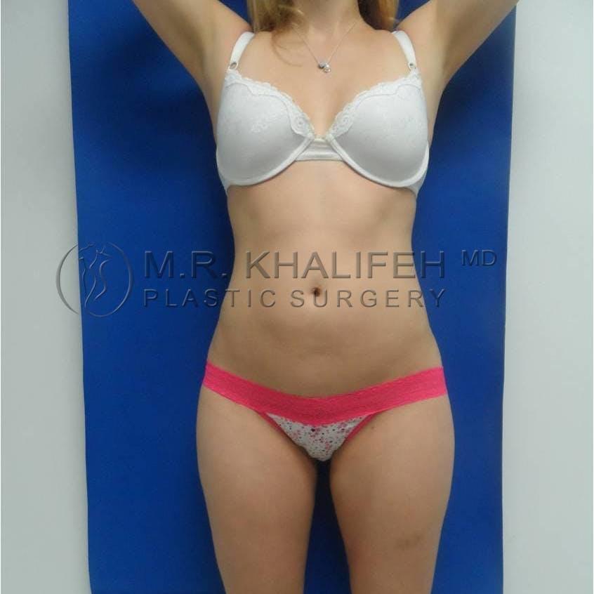 Brazilian Buttock Lift Gallery - Patient 3762682 - Image 2