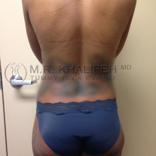Mommy Makeover Gallery - Patient 3762683 - Image 8