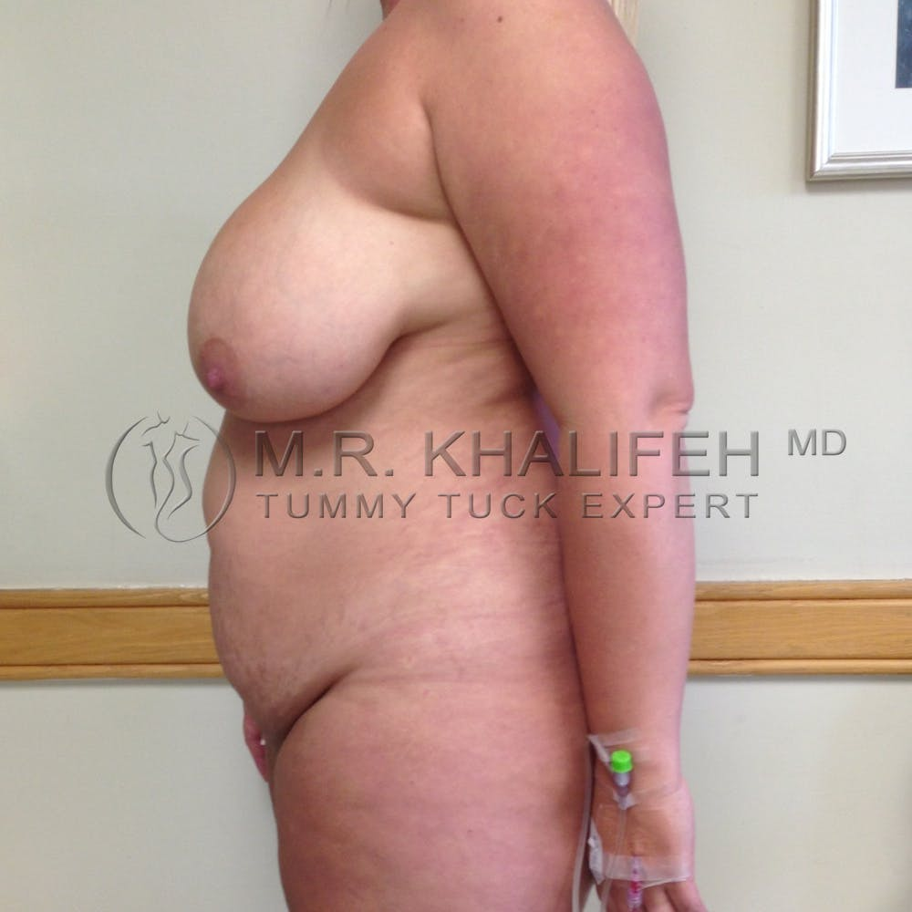 Mommy Makeover Gallery - Patient 3762756 - Image 3