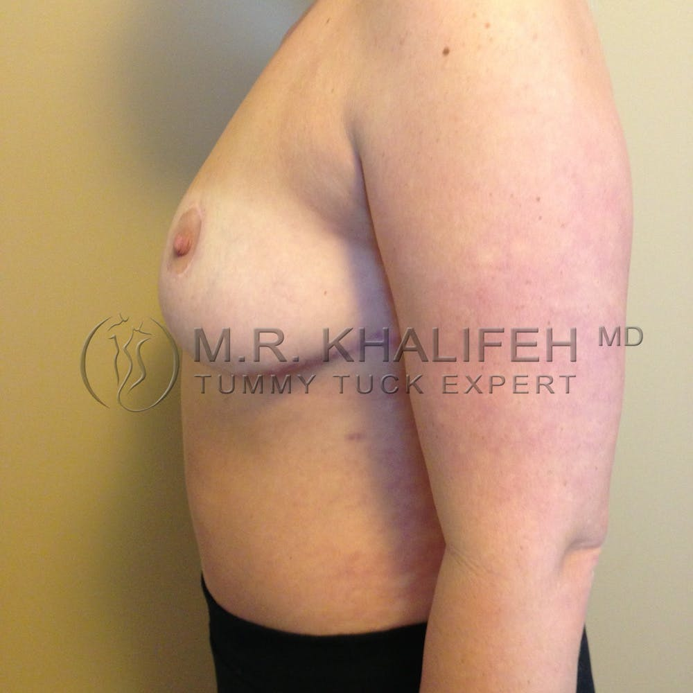 Mommy Makeover Gallery - Patient 3762756 - Image 4