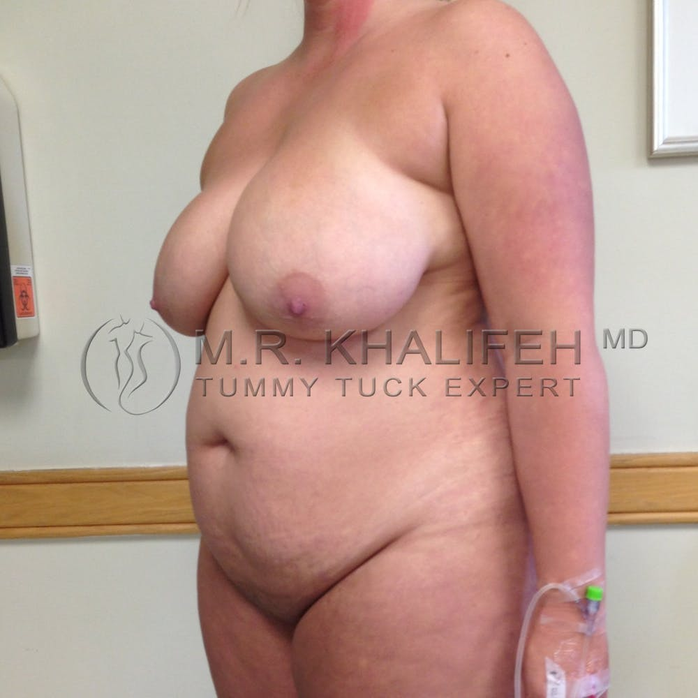 Mommy Makeover Gallery - Patient 3762756 - Image 7
