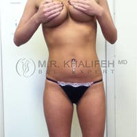 Brazilian Buttock Lift Gallery - Patient 3762839 - Image 1