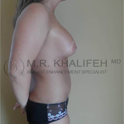 Mommy Makeover Gallery - Patient 3762873 - Image 4