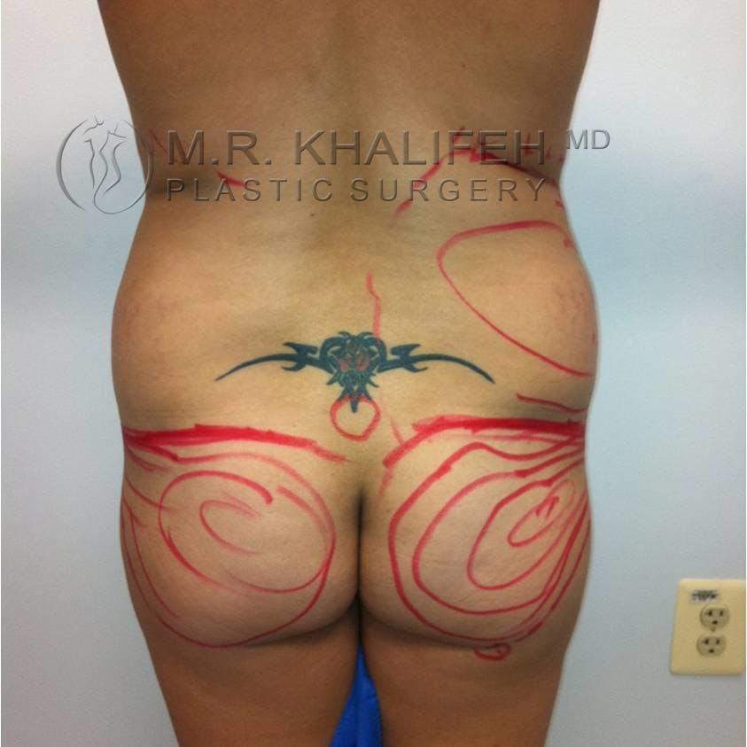 Brazilian Buttock Lift Gallery - Patient 3762875 - Image 1