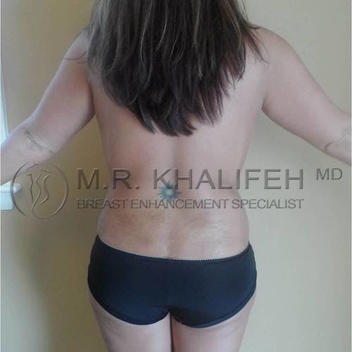 Mommy Makeover Gallery - Patient 3762873 - Image 10