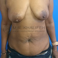 Mommy Makeover Gallery - Patient 3762977 - Image 1
