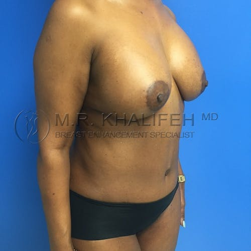 Mommy Makeover Gallery - Patient 3762977 - Image 4