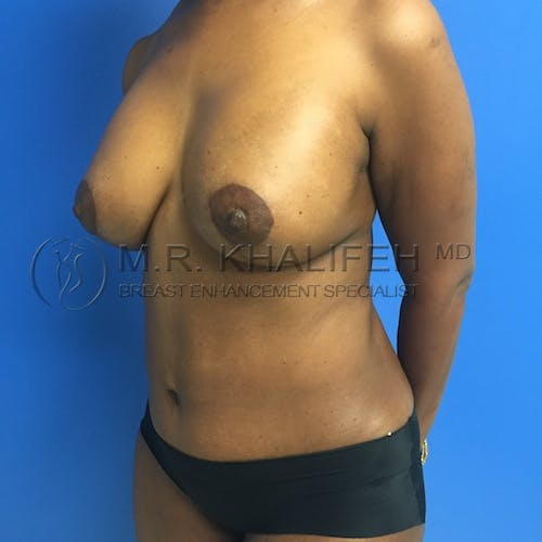 Mommy Makeover Gallery - Patient 3762977 - Image 6