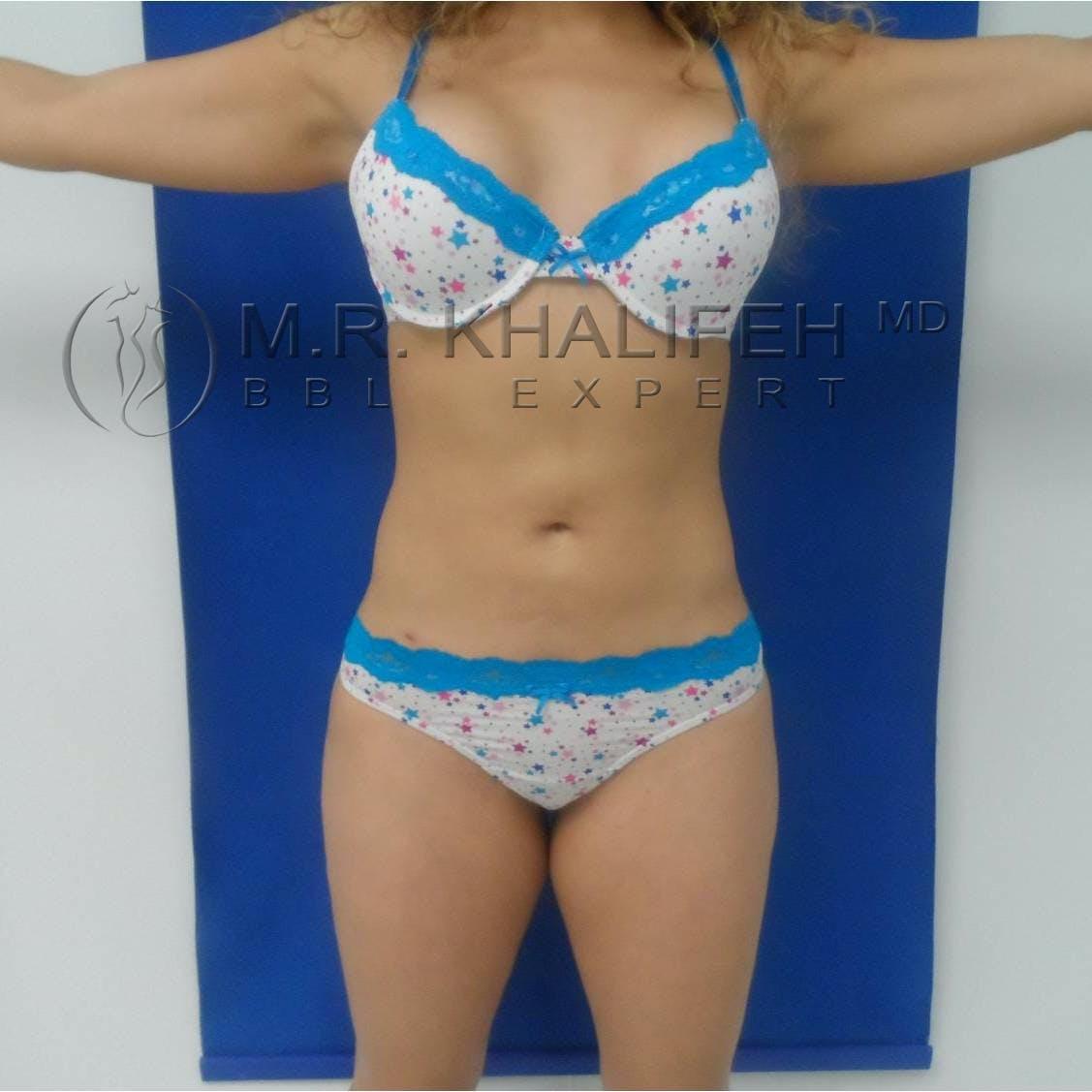 Brazilian Buttock Lift Gallery - Patient 3763051 - Image 2