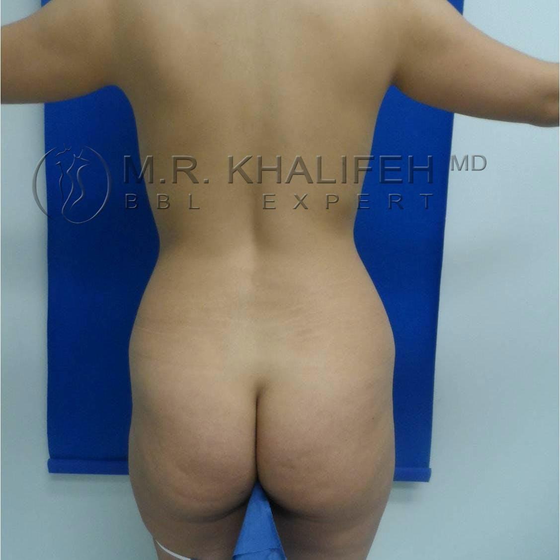 Brazilian Buttock Lift Gallery - Patient 3763051 - Image 3