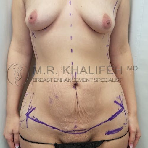 Mommy Makeover Gallery - Patient 3763050 - Image 1