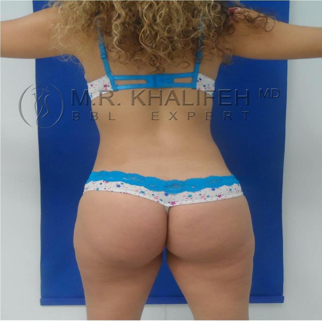 Brazilian Buttock Lift Gallery - Patient 3763051 - Image 4