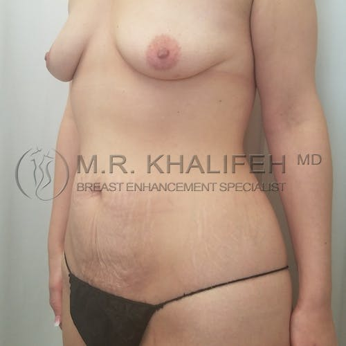 Mommy Makeover Gallery - Patient 3763050 - Image 5